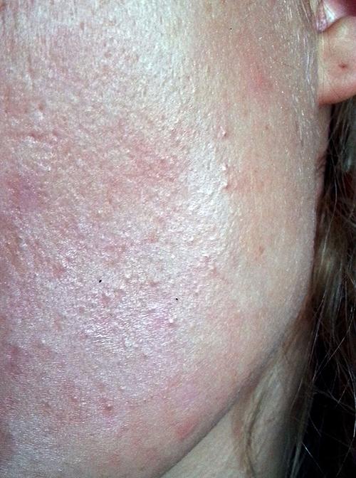 Nadležne akne na obrazu